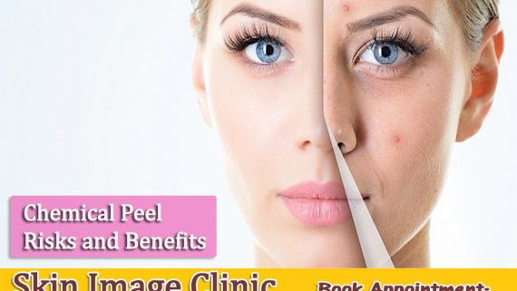 Chemical Peel Risks and Benefits