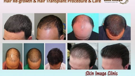 Hair Re-growth & Hair Transplant procedure & care