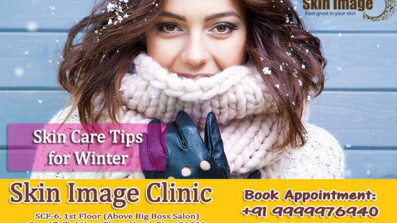 Tips for skin care in winter season