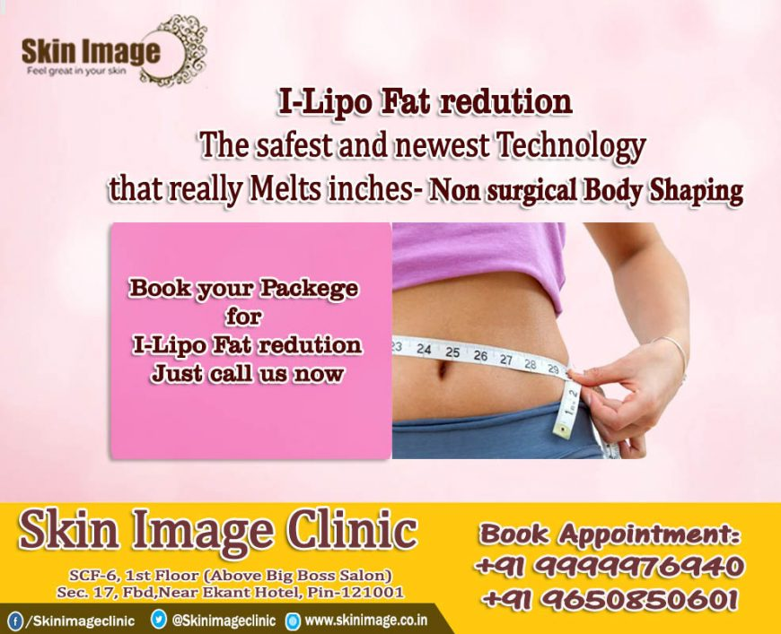 What is i-Lipo Laser fat reduction?